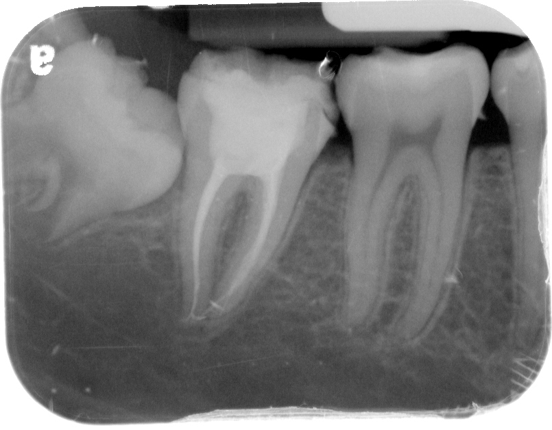 x ray molar root canal 4 canals back tooth lower right site completed in one simple visit by dr albert natanov